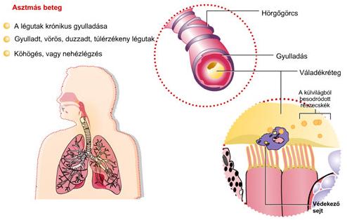 szag asztma